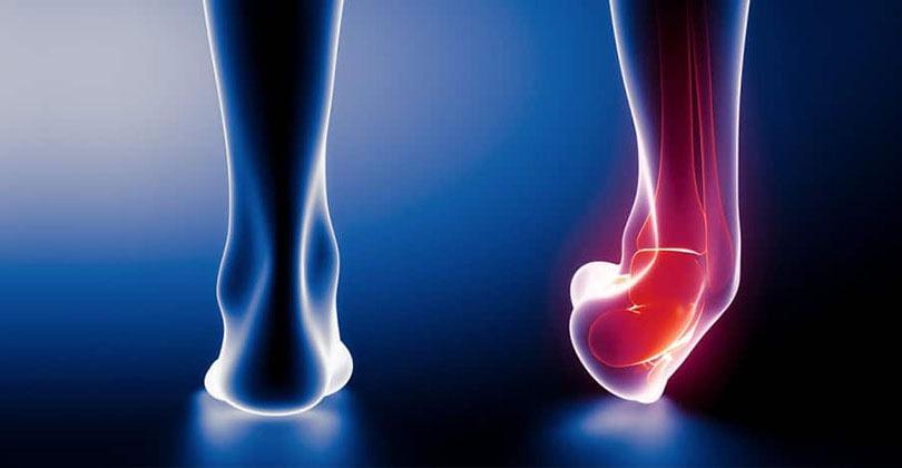ankle-sprain-1.jpg
