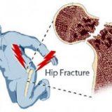 osteoporosis, terbentur bisa patah