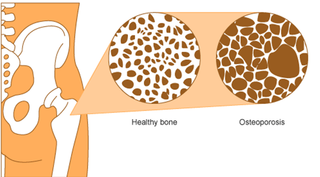 osteoporosis-Fig1BoneGraph.png