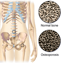 220px-Osteoporosis_Locations.png