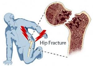 hipfracture-300x213-1.jpg