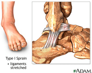 Sprain tingkat I. Ligamen masih utuh, hanya saja serabut otot mengalami tarikan/stretch dan pembengkakan