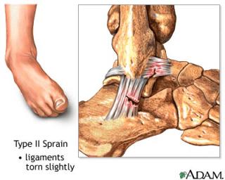 Sprain tingkat II. Sebagian serabut otot pada ligament mengalami robekan/putus sebagian